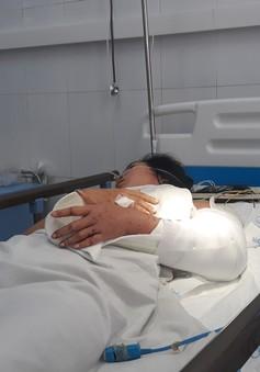 Nối liền cánh tay đứt lìa cho nạn nhân vụ lật xe trên đèo Hải Vân
