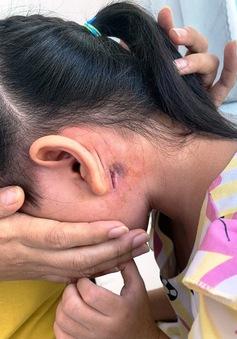 Bé 5 tuổi ở Bình Định mắc bệnh Whitmore