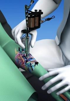 Nguy cơ nhiễm kim loại vào hạch bạch huyết từ kim xăm