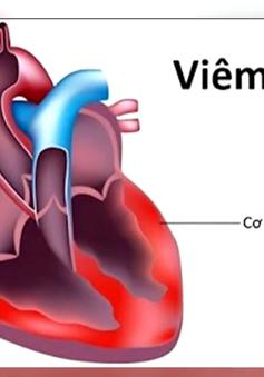 """Bộ Y tế khẳng định: Không ghi nhận chủng virus """"mới, lạ"""" gây viêm cơ tim"""