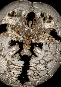 Bé trai 1 tuổi mắc bệnh loạn sản xương đòn, sọ cực hiếm gặp