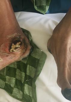 Cắt bỏ phần bàn chân hoại tử vì xơ vữa động mạch