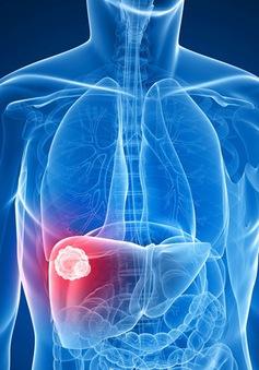 Mỹ phát triển thuật toán giúp phát hiện sớm ung thư gan