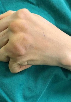 Giúp đôi tay hoạt động trở lại sau 10 năm bị viêm khớp dạng thấp