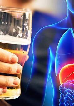Tìm ra cách  đảo ngược bệnh viêm gan do rượu bia