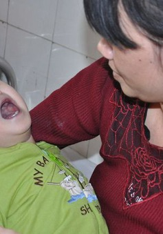 Ánh mắt cầu cứu khẩn cấp của bé gần 2 tuổi bị bại não