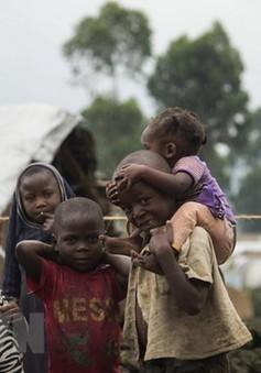 UNICEF: Khoảng 260.000 trẻ em Congo bị suy dinh dưỡng nặng cấp tính