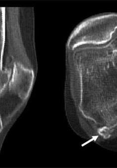 Đau đầu gối là dấu hiệu bạn có xương vừng fabella