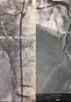 Từ một ca ngưng tim, ngưng thở đột ngột: Cảnh giác cao độ với nhồi máu cơ tim