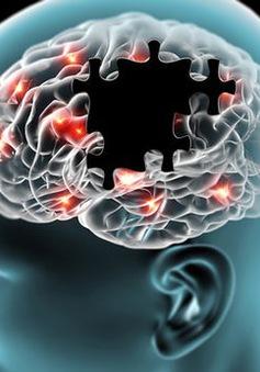 Điều trị Alzheimer bằng âm thanh và ánh sáng