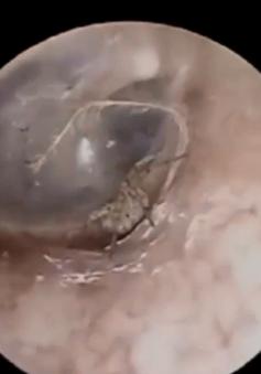 Xử lý ca nhện làm tổ trong tai bệnh nhân
