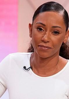 """Cựu thành viên """"Spice Girls"""" đột ngột mất thị lực"""