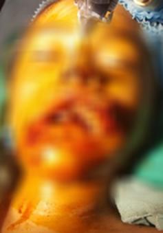 Cho trâu ăn, bé gái 9 tuổi bị húc gãy xương hàm
