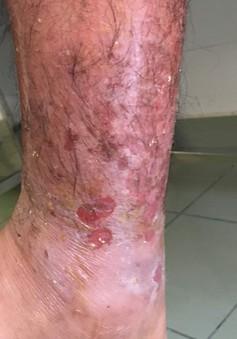 Tá hỏa nhập viện sau khi tự đắp lá để xương gãy mau lành