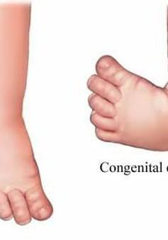 Khám, tư vấn miễn phí cho người bệnh có chỉ định phẫu thuật cổ chân và bàn chân