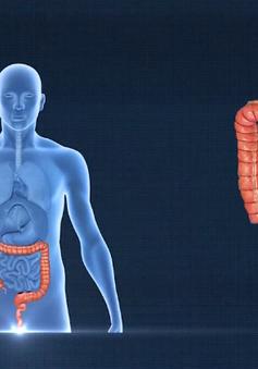 Những dấu hiệu và cách phòng ung thư đại trực tràng