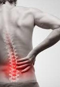 Nguyên nhân đau dọc sống lưng