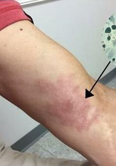 """Phát hiện mắc bệnh """"phong cùi """" từ vết bầm tím trên da"""