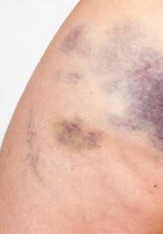 Nguyên nhân phổ biến gây các vết bầm tím trên cơ thể