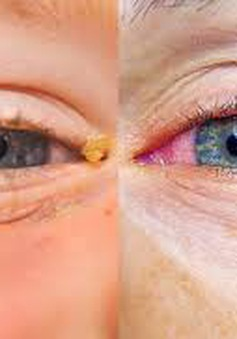 Đôi mắt bị ảnh hưởng thế nào khi dị ứng