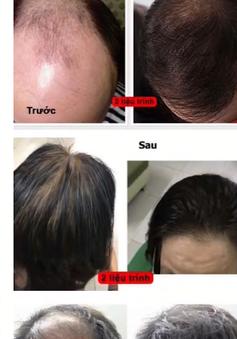 Thuốc chống rụng tóc tràn ngập thị trường: Người tiêu dùng cần cẩn trọng khi chọn mua