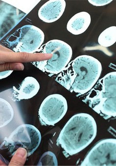 Bệnh mất trí nhớ alzheimer có sự khác biệt theo giới tính