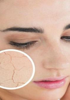 Thói quen giúp da không còn khô ráp, nứt nẻ trong mùa lạnh