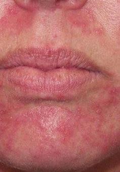 Nguyên nhân khiến bạn bị viêm da quanh miệng