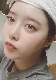 Đăng ảnh trên mạng xã hội, fan lo ngại Goo Hye Sun bị trầm cảm