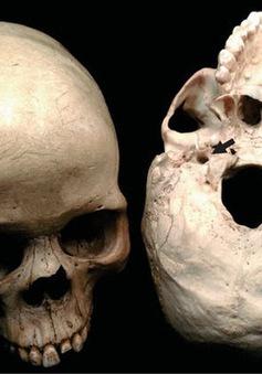 Kích thước bộ não không quyết định trí thông minh, mà chính là lượng máu lưu thông lên não