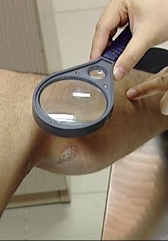 Gần 100 người đến khám mỗi ngày vì tiếp xúc với kiến ba khoang