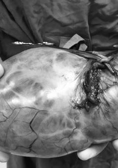 Cắt khối u buồng trứng nặng 3kg cho cụ bà 75 tuổi