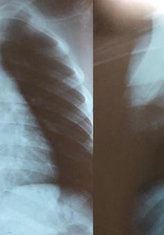 Bé trai 5 tuổi nhập viện vì nuốt viên bi sắt
