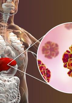 Bệnh viêm gan E cần được lưu ý hơn từ cộng đồng