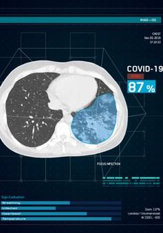 Sử dụng AI để tìm cách điều trị tốt nhất cho bệnh nhân COVID-19