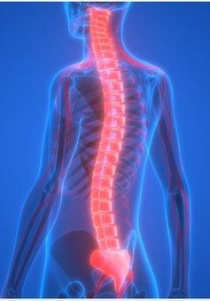 Teo cơ tủy - căn bệnh di truyền lặn trên nhiễm sắc thể gây tử vong hàng đầu ở trẻ nhỏ
