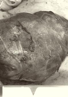 Suốt 10 năm sống cùng khối bướu cổ khổng lồ