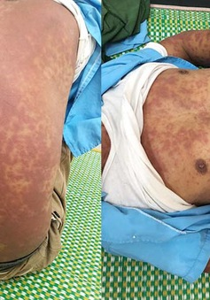 Nổi ban tím toàn thân sau khi lội xuống ao, người đàn ông gặp biến chứng nguy hiểm