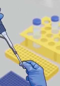Xét nghiệm SARS-CoV-2 cho người có nhu cầu xuất cảnh