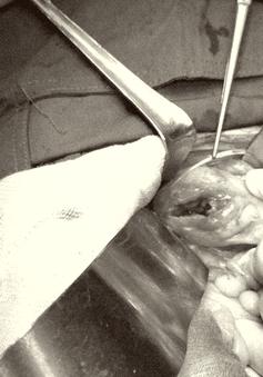 Đau quặn bụng nhập viện, phát hiện thủng trực tràng do hóc xương cá