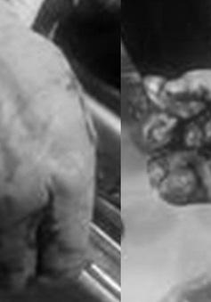 Nổ bình gas mini khi ăn lẩu, một người dập nát tay