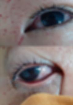 Tổn thương 2 mắt do chơi pháo diêm tự chế