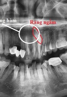 Sưng đau môi trên lâu ngày: Cẩn trọng có thể bạn mắc u xương hàm