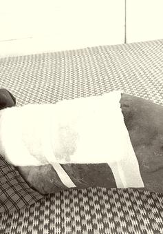 Nhiễm trùng vết bỏng nặng do tự đắp thuốc nam điều trị tại nhà