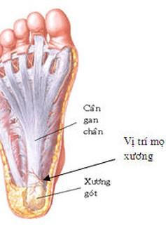 Không nên đi lại nhiều khi bị gai xương bàn chân