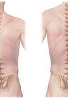 Giải pháp nào cho trẻ vẹo cột sống?