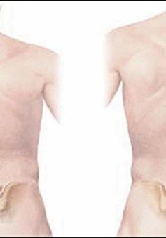 Phát hiện sớm chứng vẹo cột sống ở trẻ em