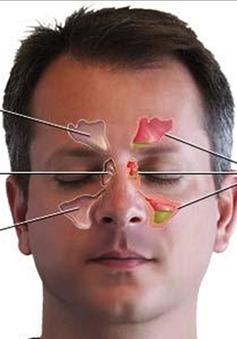 Các bệnh dị ứng và cách điều trị viêm mũi dị ứng