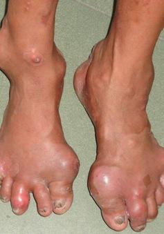 Bài thuốc điều trị hiệu quả bệnh Gout