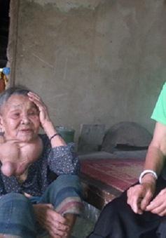 """Cụ bà 80 tuổi mang khối u """"khổng lồ"""""""